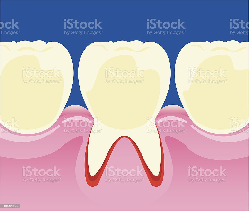 Tooth decay vector art illustration