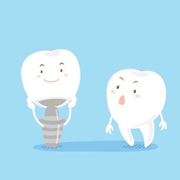 Pilihan Implan Gigi- Global Estetik Dental Care