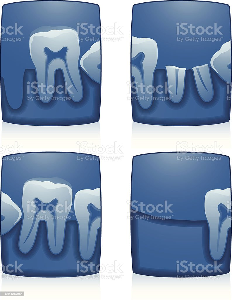 Tooth X-Ray royalty-free stock vector art