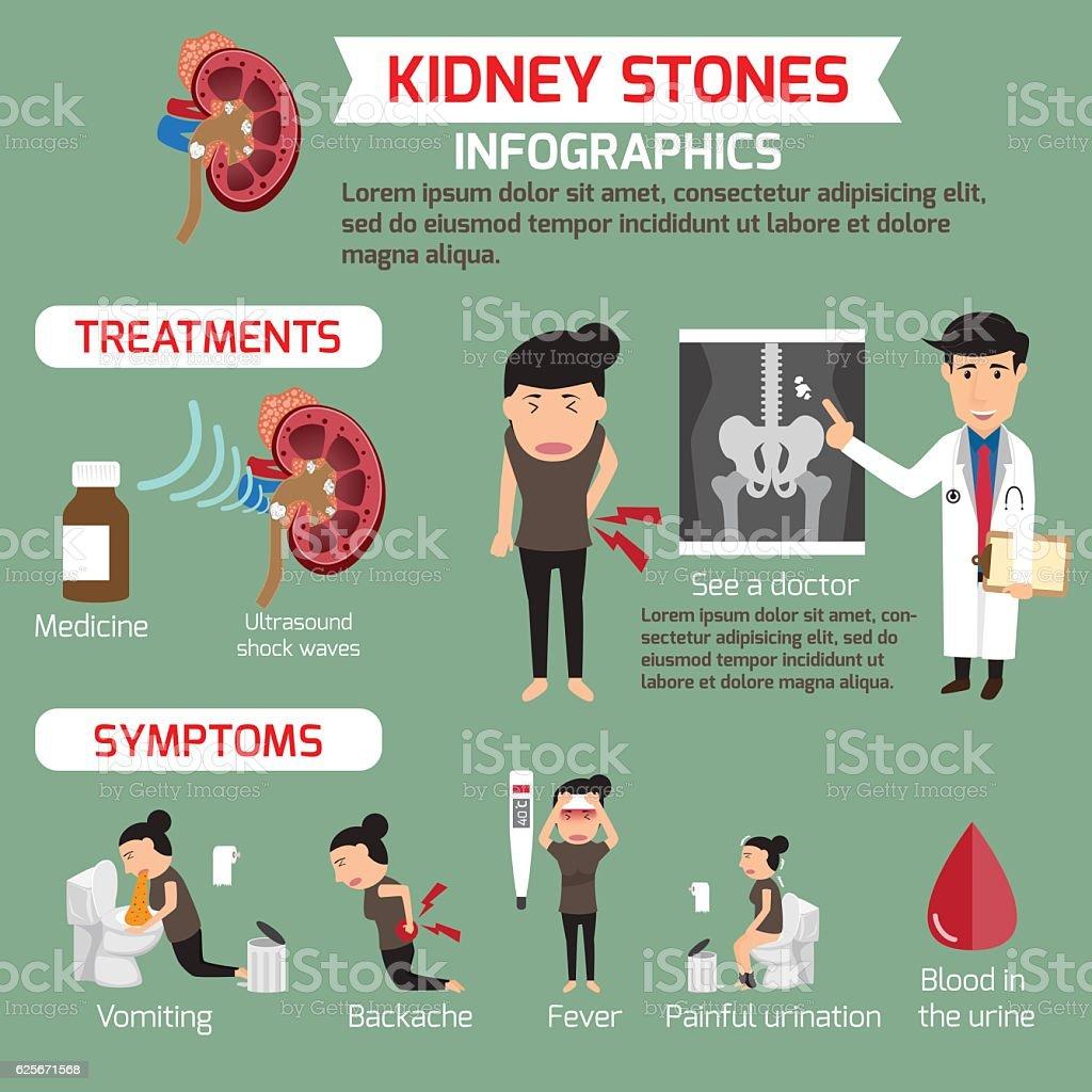 Treatment and symptoms of kidney infographics. vector illustrati vector art illustration