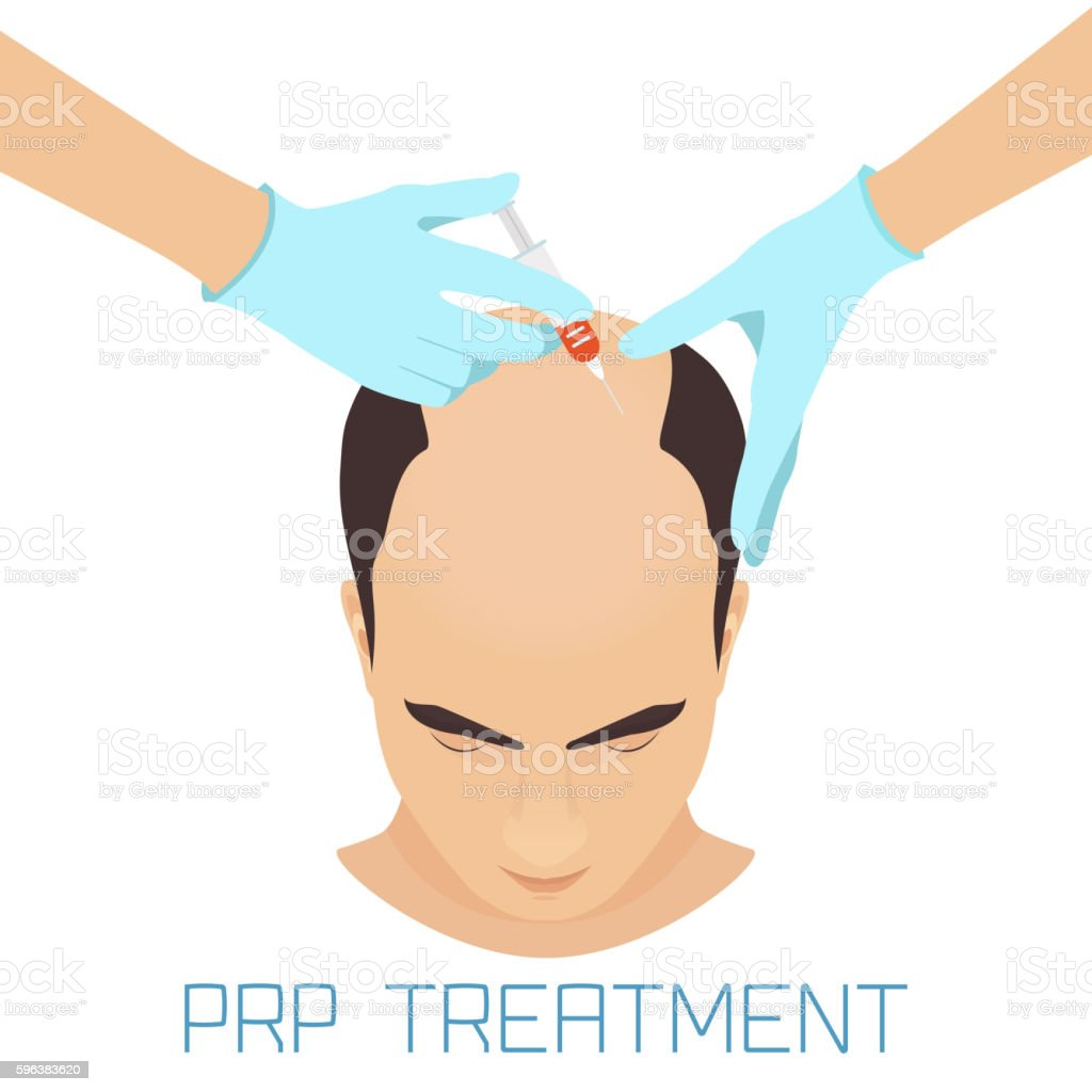 PRP treatment for men vector art illustration