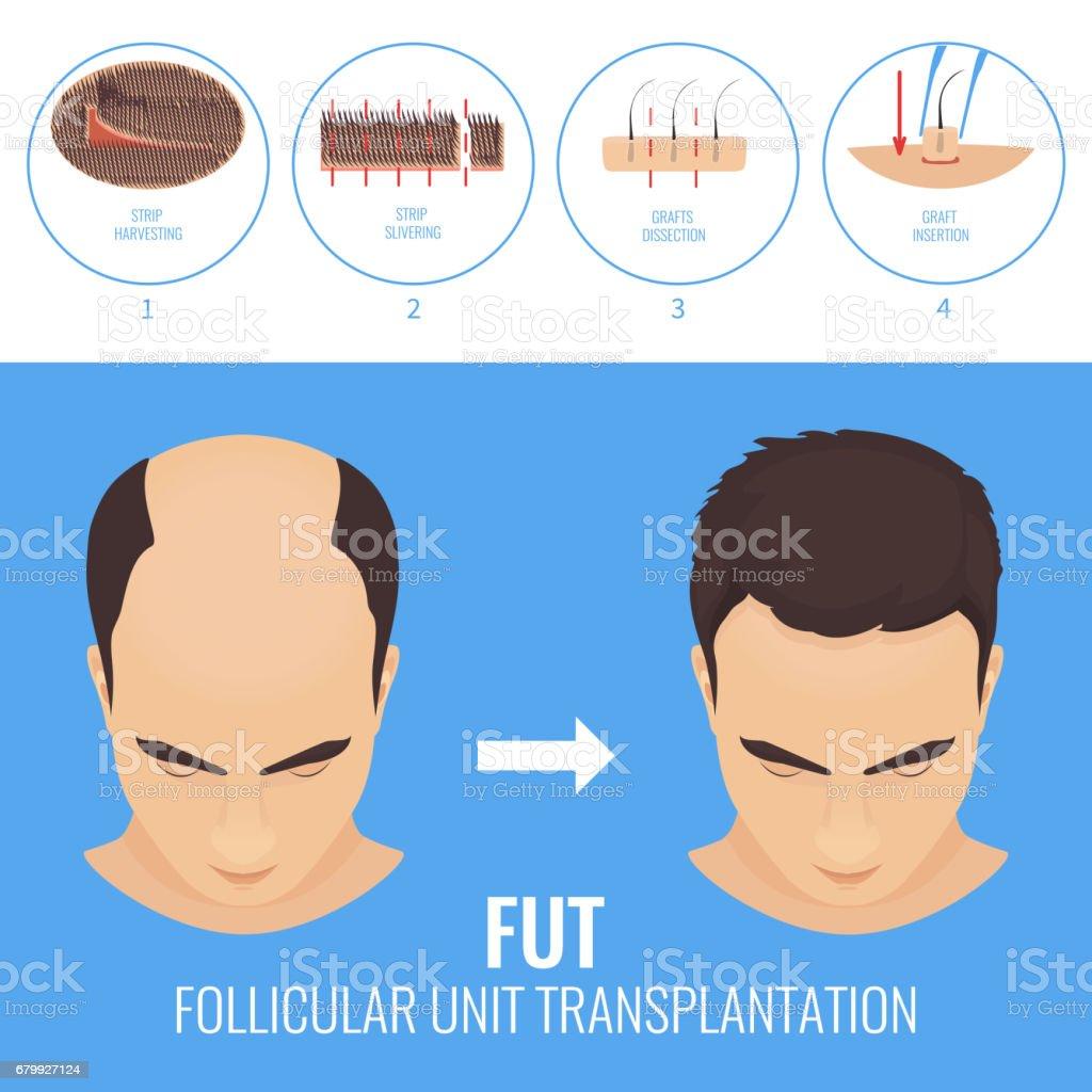 FUT treatment for men vector art illustration