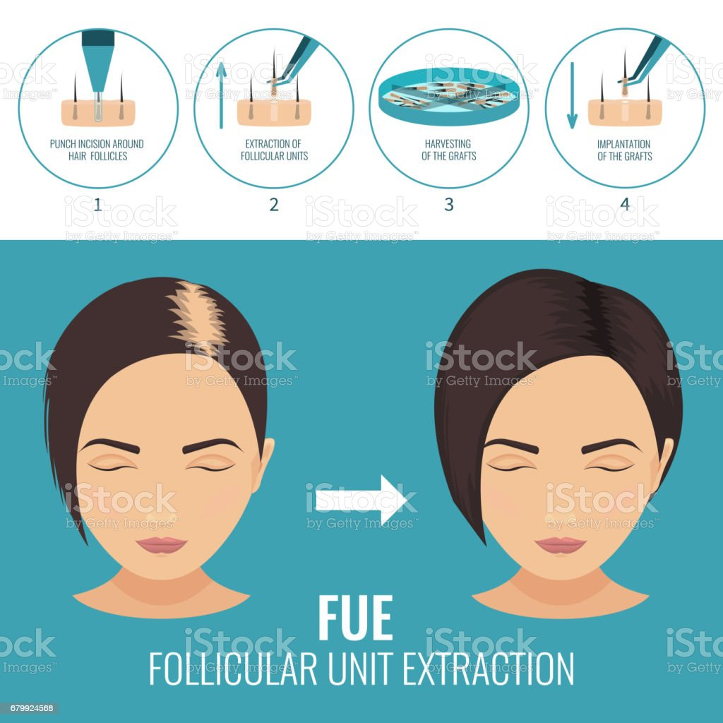 FUE treatment for women vector art illustration