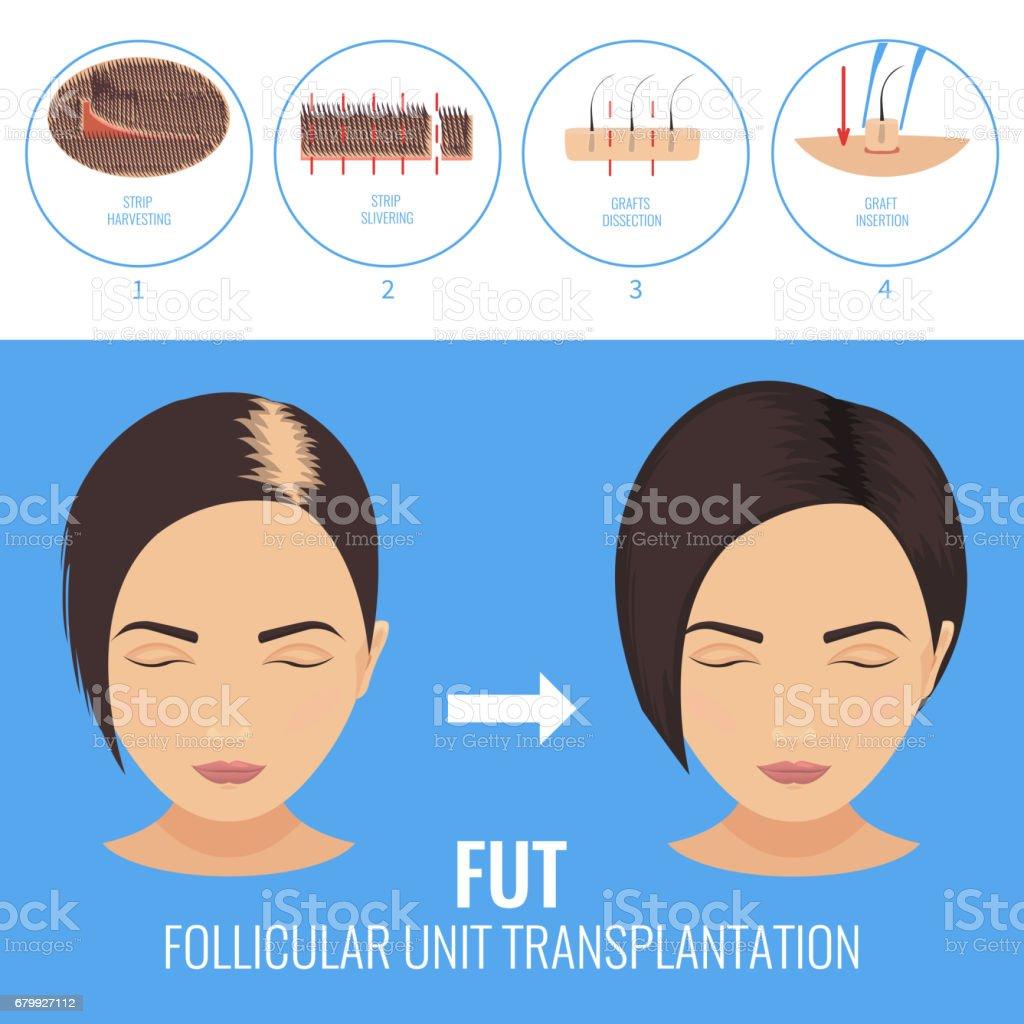 FUT treatment for women vector art illustration