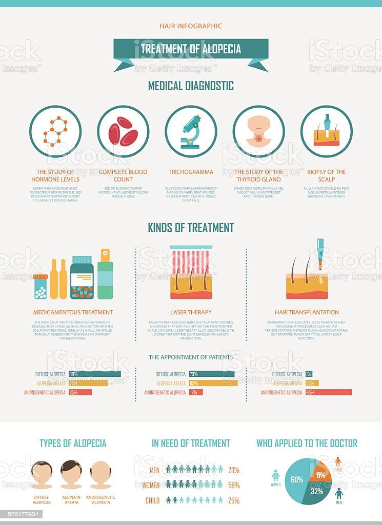 Treatment of alopecia. Vector infographics by diagnostics for hair loss. vector art illustration