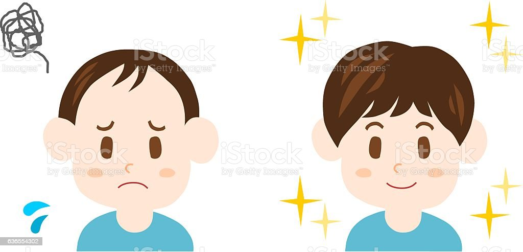 Trouble of thinning hair(man) vector art illustration