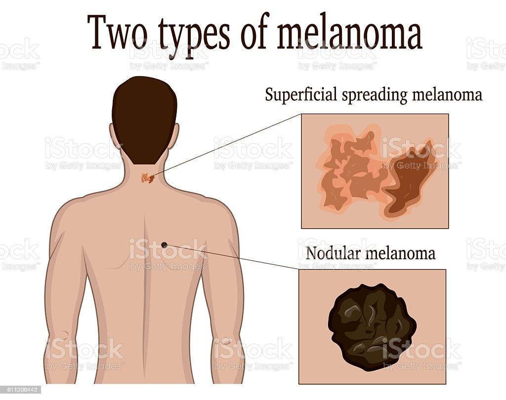 Two types of melanoma vector art illustration