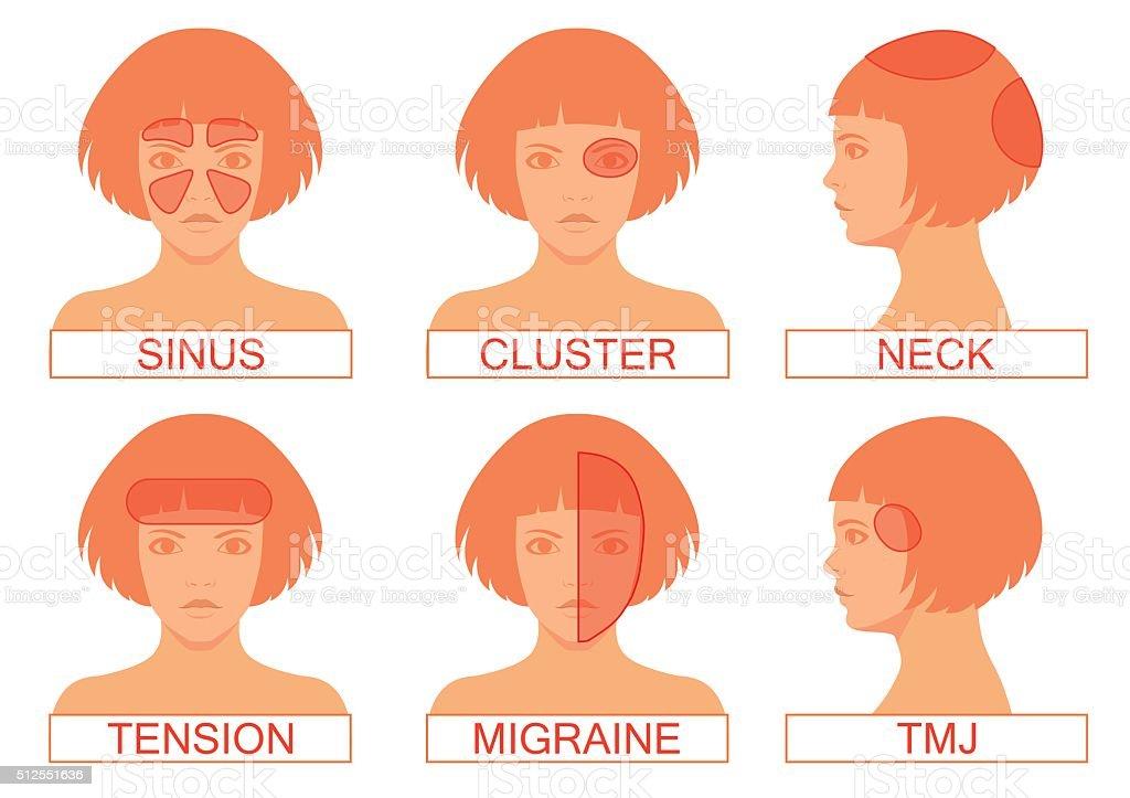type of headache pain, vector art illustration