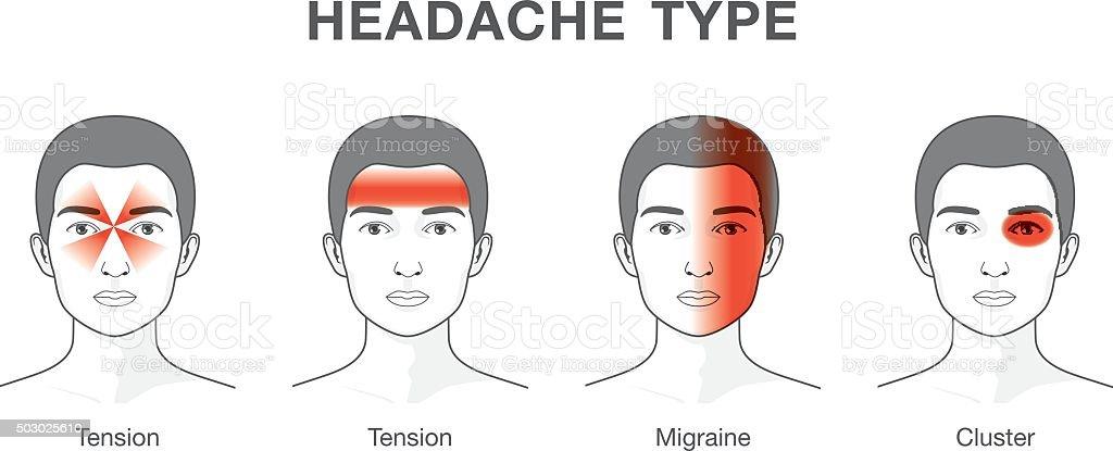 Type of headache vector art illustration