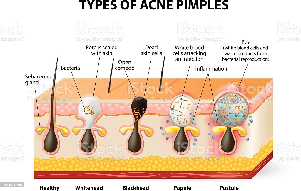 Types of acne pimples vector art illustration