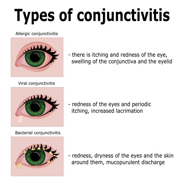 Allergic Conjunctivitis Vs Bacterial Pictures To Pin On