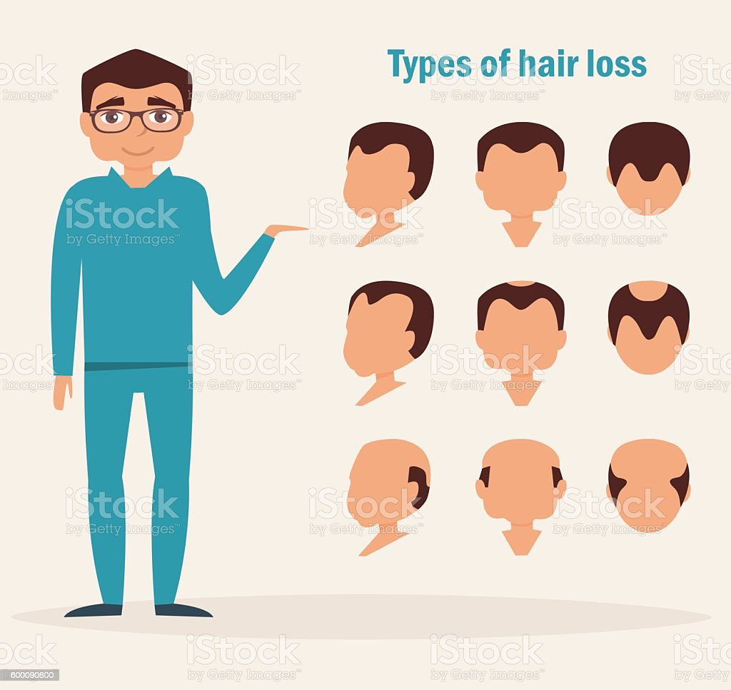 Types of hair loss. vector art illustration