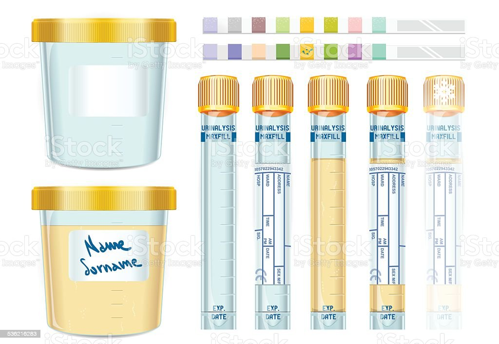 Urinalysis Yellow Cap Tubes Set, empty, filled, frozen and dipis vector art illustration