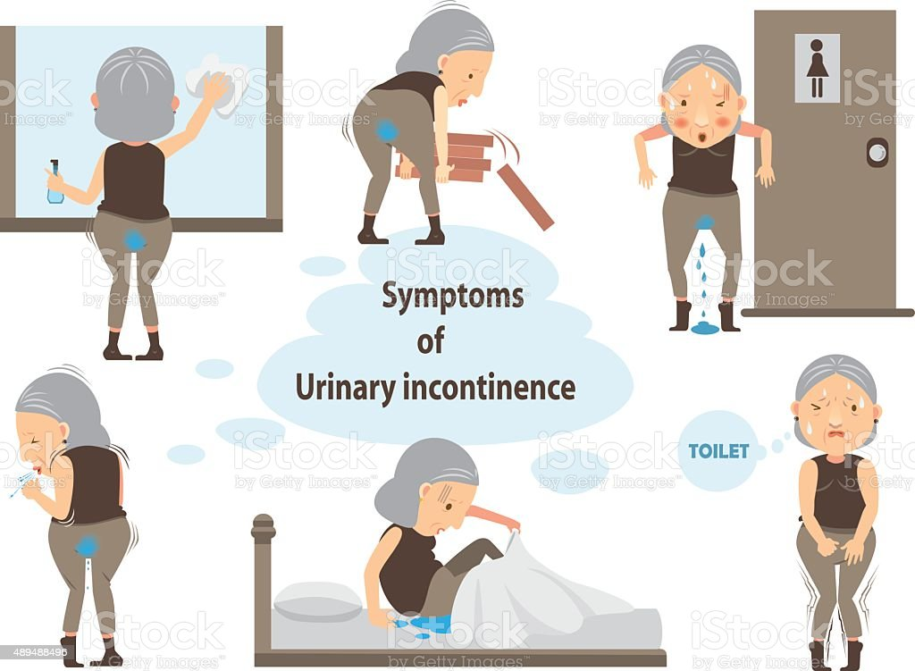 urinary incontinence vector art illustration