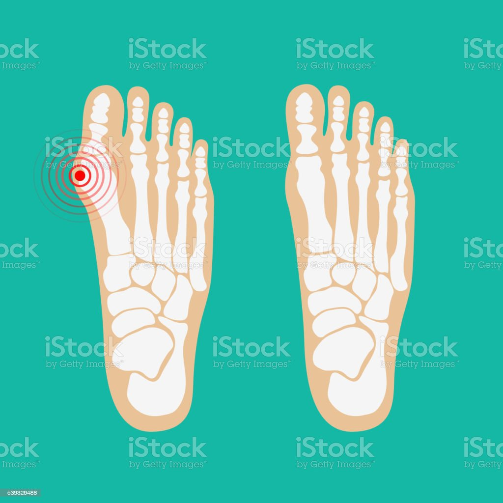 Valgus deformity of the big toe. Foot health care. vector art illustration