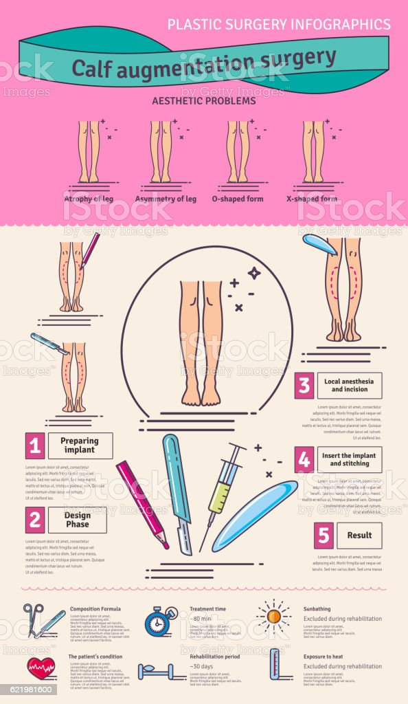 Vector Illustrated set with calf augmentation surgery vector art illustration