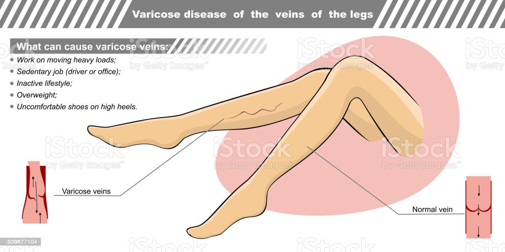 Vector illustration a varicose illness of veins the legs vector art illustration