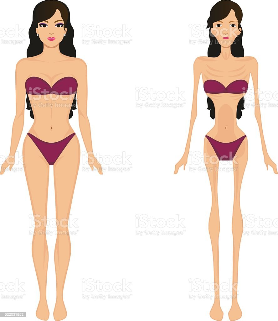 Vector illustration female anorexia. Women bulimia vector art illustration