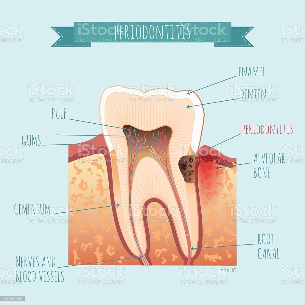 Vector tooth anatomy. Periodontitis vector art illustration