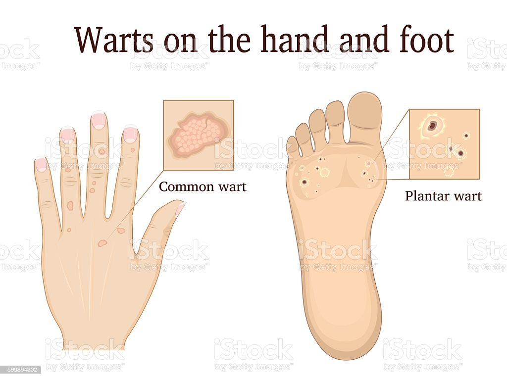 Warts on the hand and foot vector art illustration
