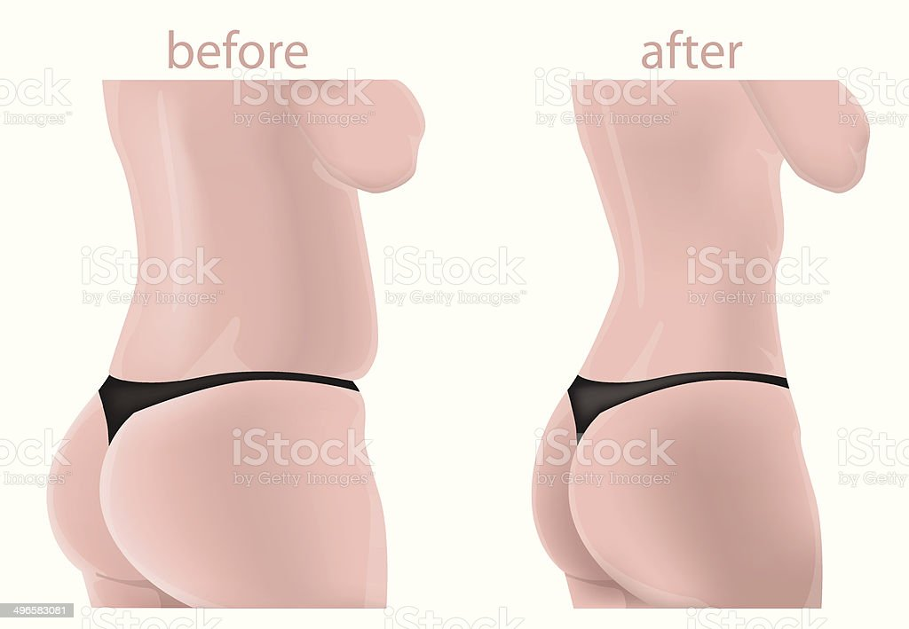 Woman body before and after vector art illustration