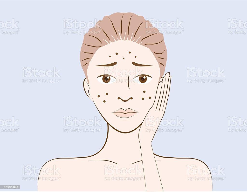 Women have problem acne skin vector art illustration