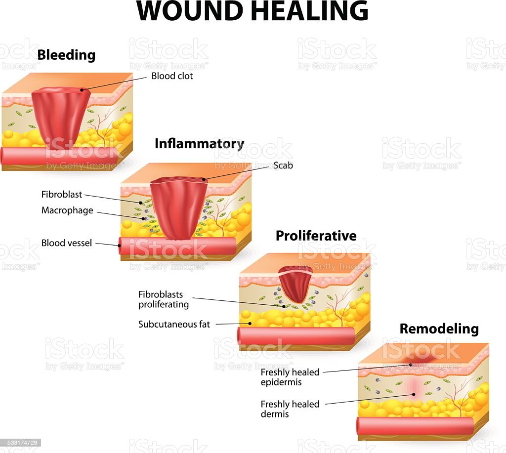 wound healing vector art illustration