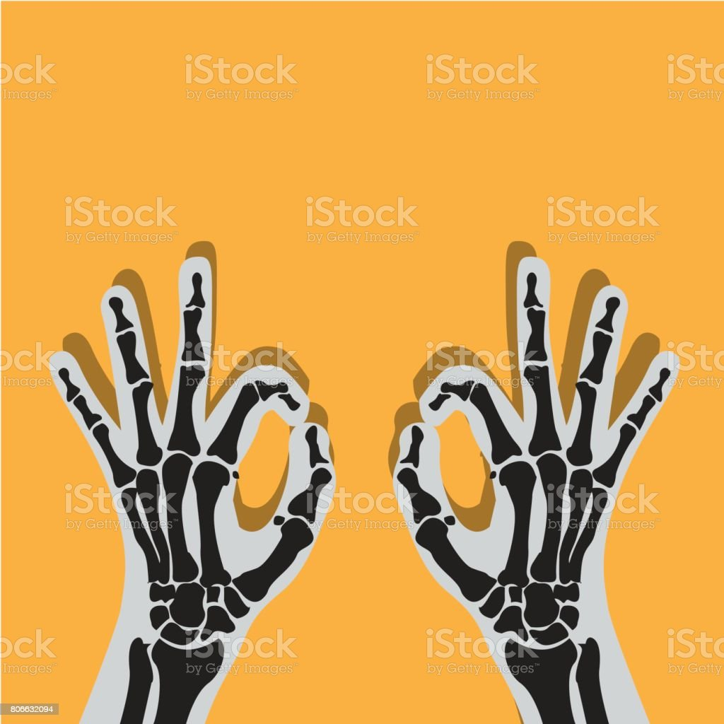 X-ray hand fracture vector art illustration