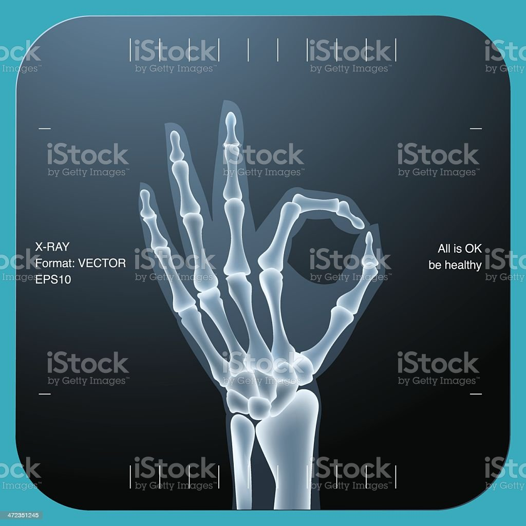 X-ray of both human hand - OK symbol royalty-free stock vector art