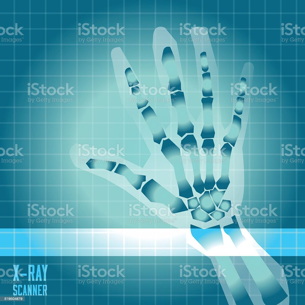 X-ray of human hand with scanner light - vector illustration vector art illustration