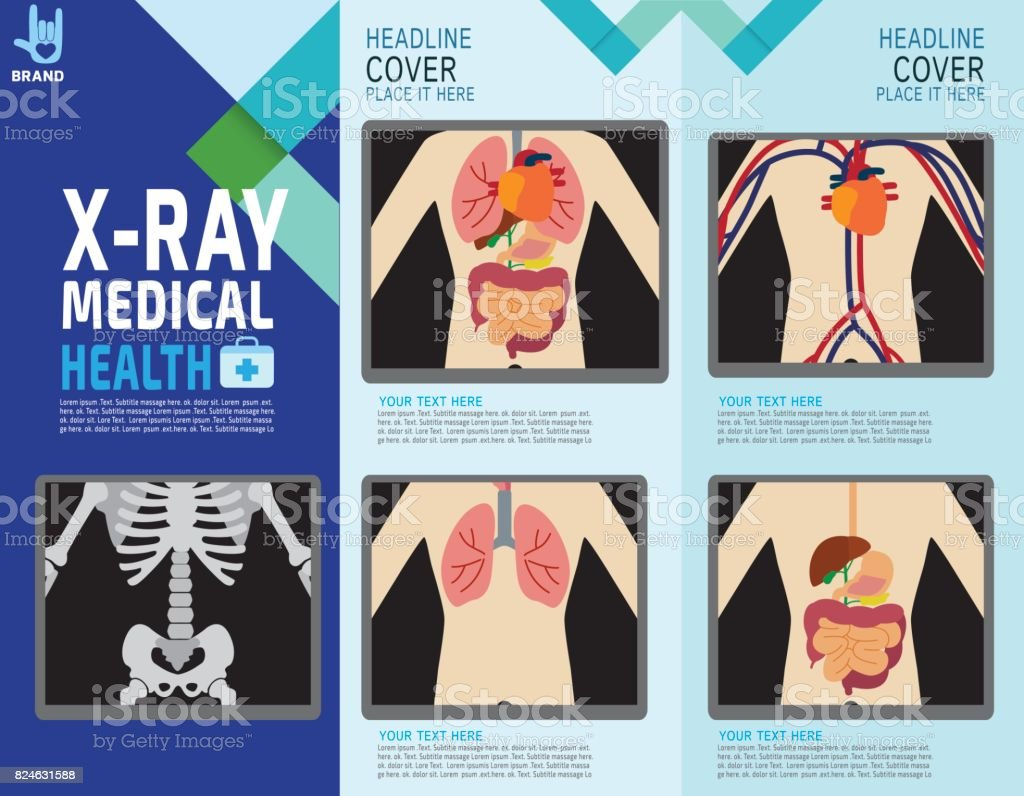 X ray poster design - X Ray Screen Showing Internal Organs And Skeleton Human Body Systems Digestive