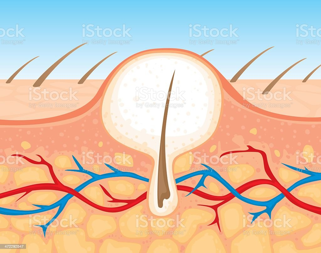 zit cross section vector art illustration