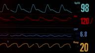 ECG (HD) video