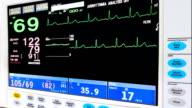ECG монитор video