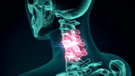 3d rendered illustration of a painful neck. medical concept animation. video