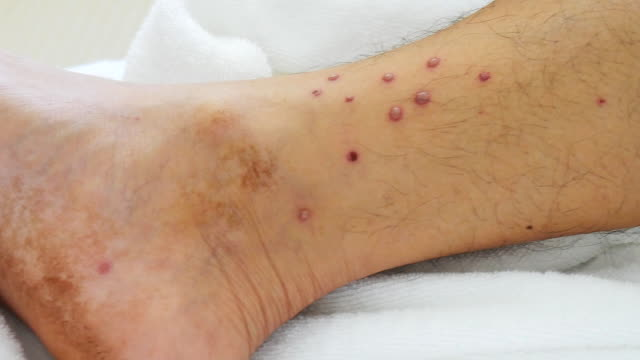 allergy on legs ; visible allergy to male legs video