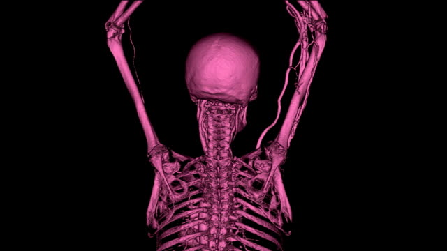 CT Angiography Upper Extremity video
