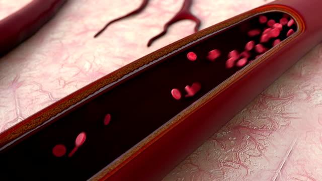 Artery video