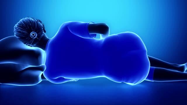 BAd woman sleeping posture animation video