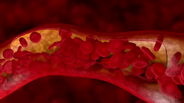 Blood clot in human artery or vein video