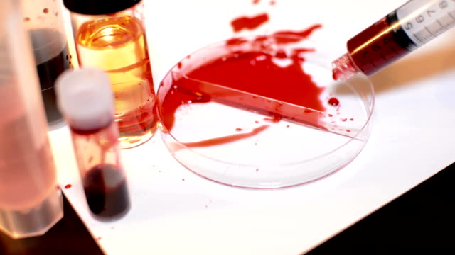 Blood Mess - Laboratory Accident video