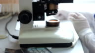A blood test in the lab. video