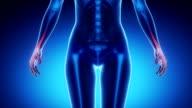 WRIST bone skeleton x-ray scan in blue video