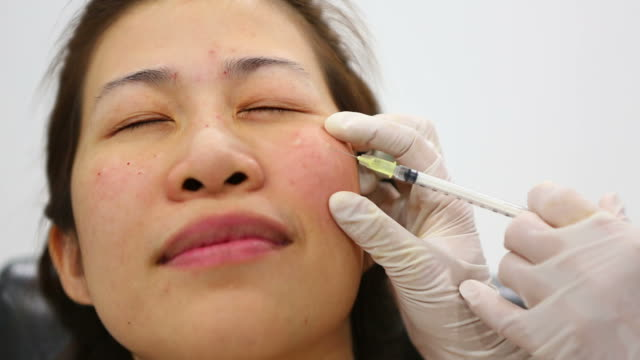 Botox Injection video