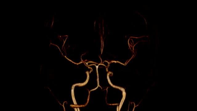 Brain Artery video