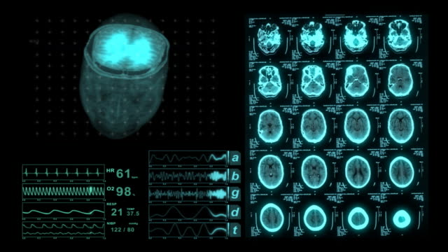 Brain CAT Scan Medical XRay Monitor Display video