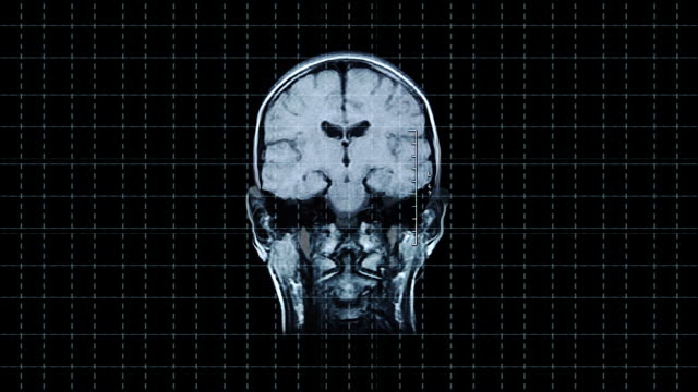 Brain front MRT scan video
