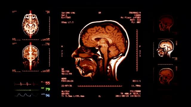 Brain, Knee, Neck MRI Scan. Amber. video