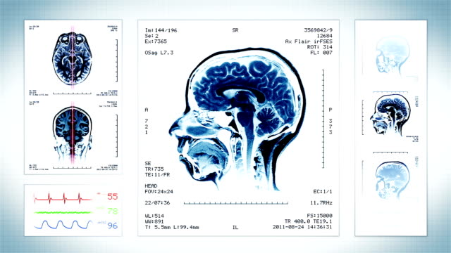 Brain, Knee, Neck MRI Scan. gray. video
