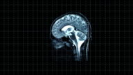 Brain left MRT scan HD1080, NTSC, PAL video